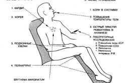 Схема основных симптомов ревматизма