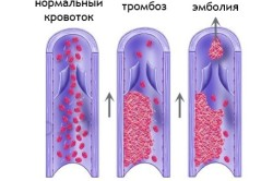 Схема тромбоза