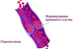 Схема образования тромбоза вен