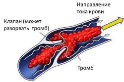 Схема тромбофлебита